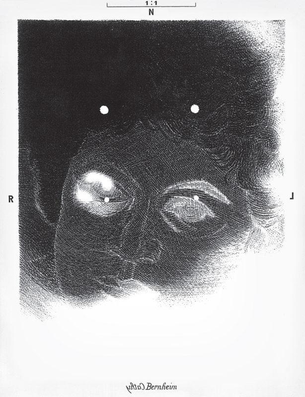 Bernheim - gravure de Sonja Hopf